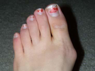 Можно ли избавиться от косточек на больших пальцах ног
